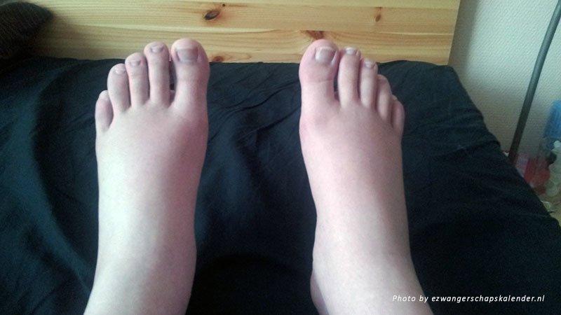 postpartum-swollen-feet